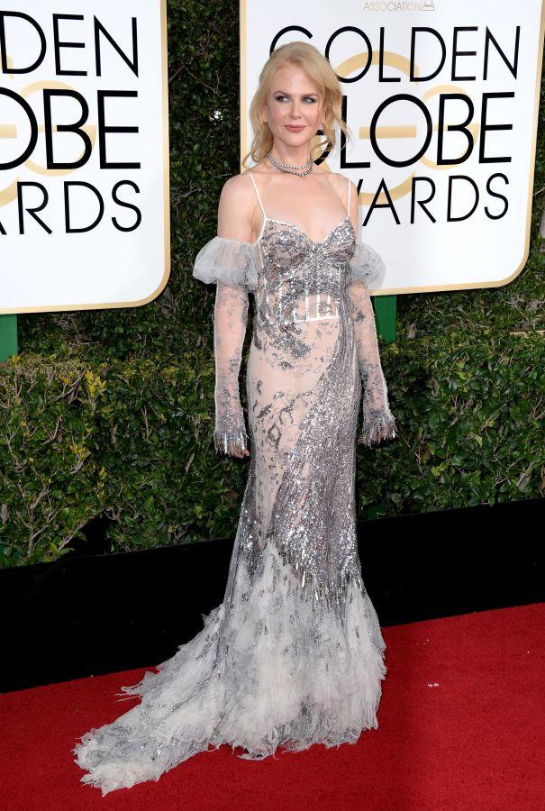 2017: Nicole Kidman Gets Mixed Review