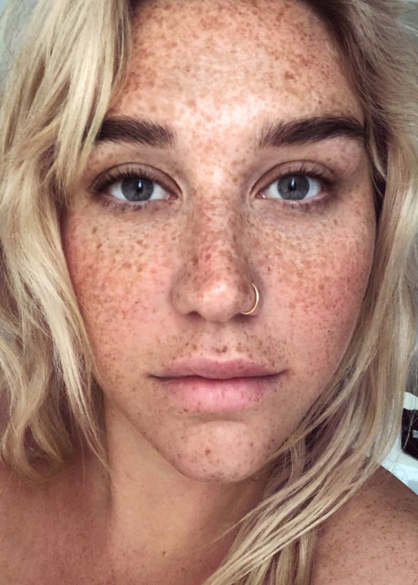 Free The Freckles